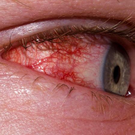 Почему болят глаза